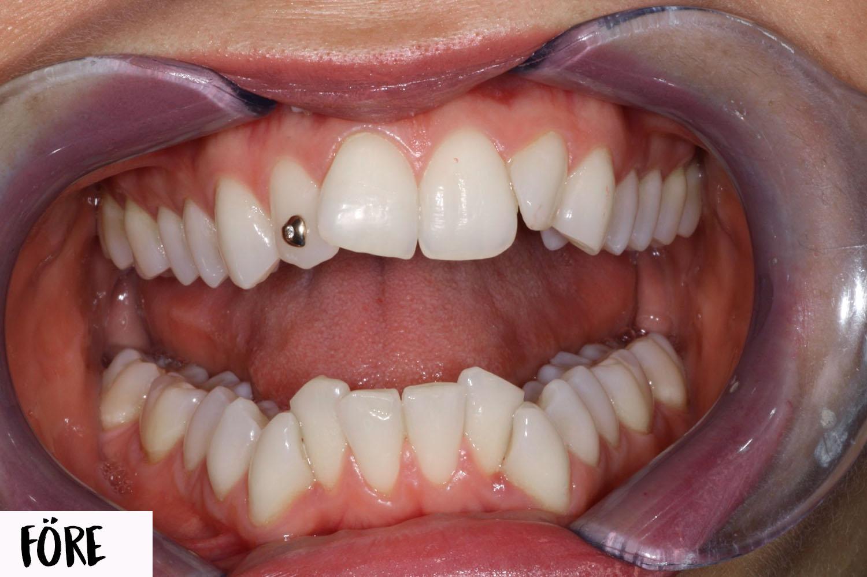 kan man få tandställning om man vill